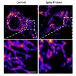 Covid-19 é uma doença vascular conclui estudo